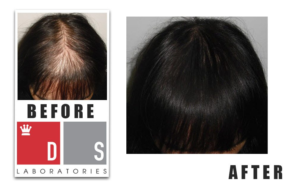 Before and After DS Labs Hair Regrowth Treatment in a Woman