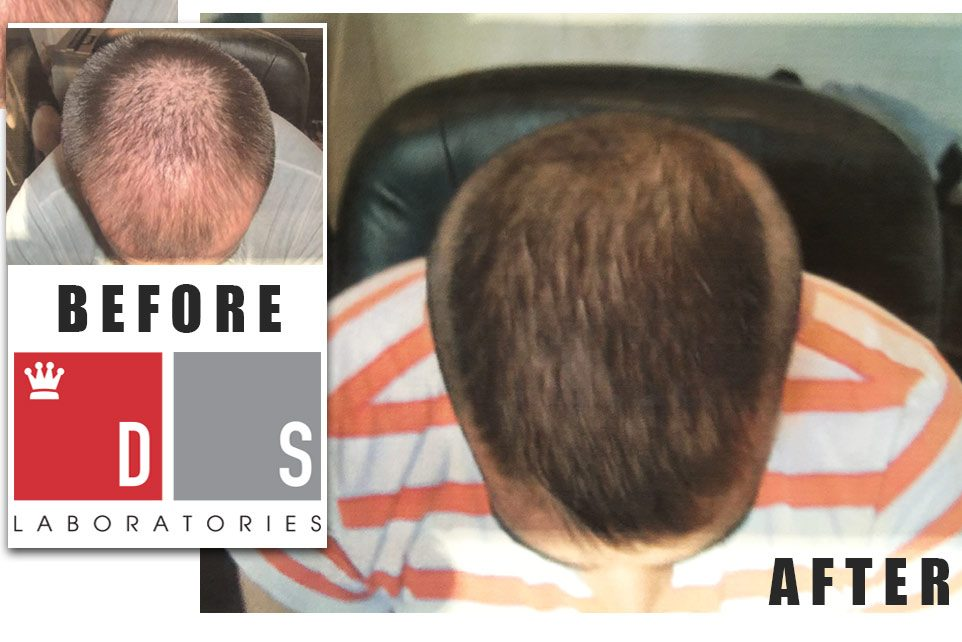 Before and After DS Laboratories Hair Restoration Products