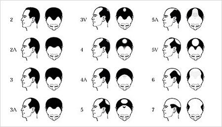 Male Pattern Baldness