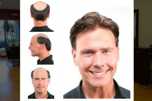 Before and After Hair Replacement for Men