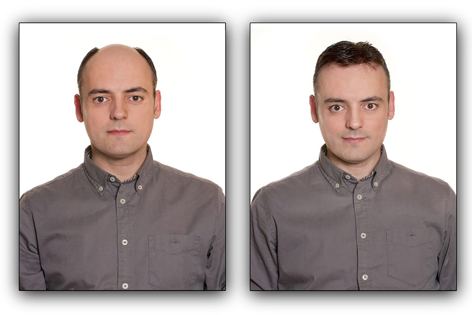 Before and After Men's Hair Replacement