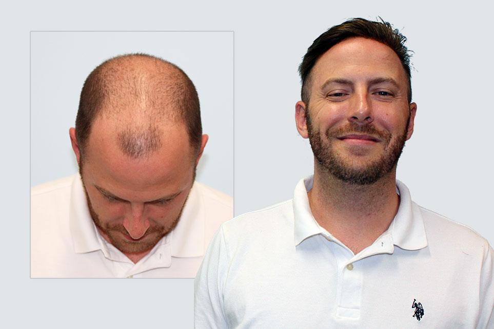My Choice Hair Hair Replacement for Men Alex 1