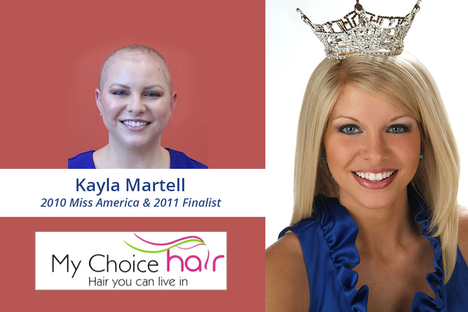 My Choice Hair Hair Replacement for Women Kayla 3